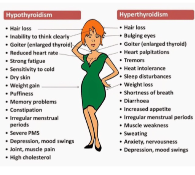 Hypothyrodism and Hyper Thyroidism